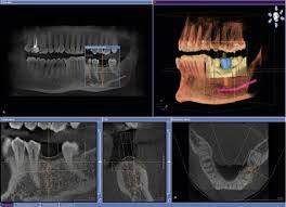 Dental 3D Xrays