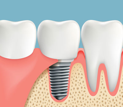 Dental Implants Winneconne WI
