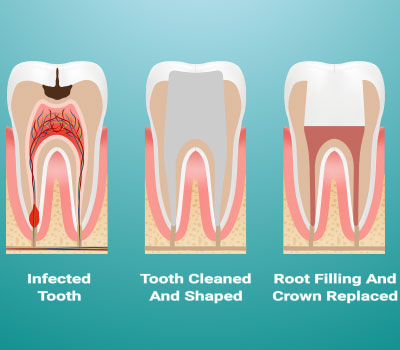 Root Canal Treatment in Winneconne, WI